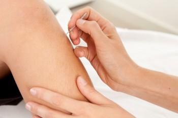 نقطهی طبسوزنی زوسانلی باعث سلامتی و سرزندگی