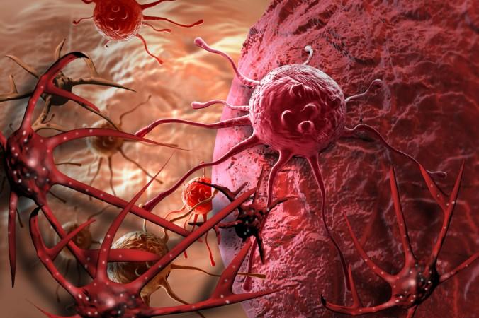 کنترل سرطان از طریق اصول و شیوه های طب چینی